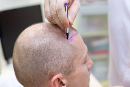 Plan hair transplant 2